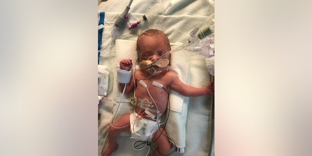 """When the twins were born on January 13, Eva arrived in the world crying and breathing while Lucy [pictured] was blue and """"very sick,"""" Zwick says, and the newborn was immediately placed on maximum support for her lungs."""