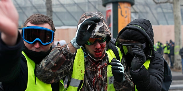 A demonstrator wearing a yellow vest is covered in blood after getting in injured during a protest in Paris, Saturday, Dec. 8, 2018.