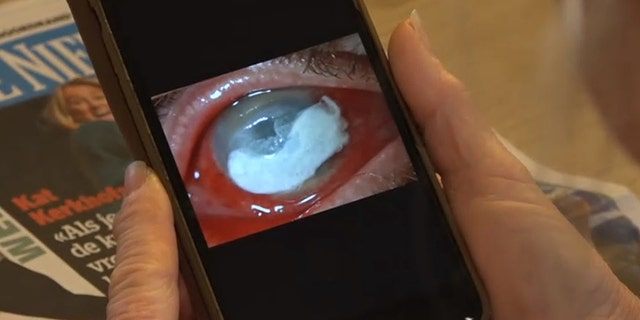 Petra van Kalmthout shows a picture of her eye infected with the parasite. (CEN)