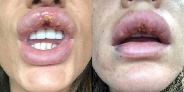 Knappier said she had previously received Botox at a clinic, and thought the injection would be safe.