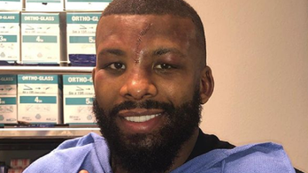 GRAPHIC PHOTO: Boxer Badou Jack sustains gruesome injury during match defeat