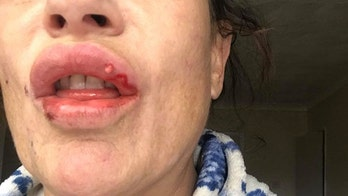 Mom's lips left oozing pus after low-cost fillers