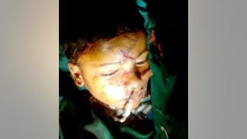 Boy survives horrific injury after bolt pierces skull