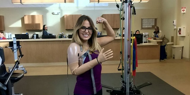 She now has a myoelectric-controlled prosthetic arm, and has since returned to her job at a New Jersey hospital.