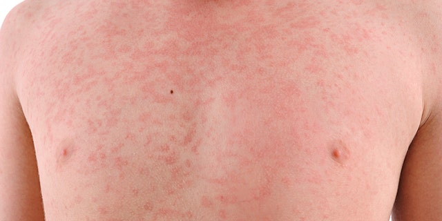 Measles symptoms begin with a fever, cough, runny nose and red eyes, are are followed by a rash.