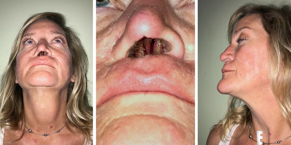 Woman left with 1 nostril hole after botched surgery to fix dog bite | Fox  News