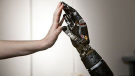 Prosthetic arm stolen from vehicle parked in San Francisco, police say