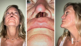 Woman left with 1 nostril hole after botched surgery to fix dog bite