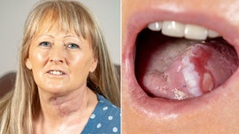 Mom gets new tongue made from arm after cancer diagnosis