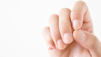 How this mark on your nail may reveal skin cancer