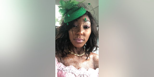 Brittany Mickens, 31, said it wasn't until she was 18 that she finally learned what caused her skin to form a thick scale-like texture.