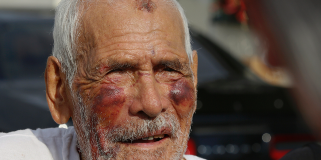 FILE - In this July 11, 2018, file photo, Rodolfo Rodriguez, 92, thanks well-wishers for their help, as he talks to the media gathered outside his home in Los Angeles. A Los Angeles woman has been sentenced to 15 years in prison in the beating of the 92-year-old man that was captured on video and shared widely on social media. Thirty-year-old Laquisha Jones was sentenced Thursday, Feb. 28, 2019, following her no contest plea to elder abuse in December. Prosecutors say Jones severely beat Rodriguez in the face with a brick on July 4 as the elderly man was taking a walk. (AP Photo/Damian Dovarganes, File)