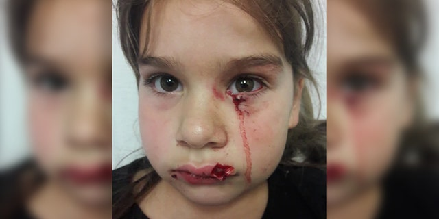 Gabriella Gonzalez sustained serious facial injuries from the attack.