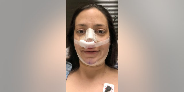 Post surgery recovery from the rhinoplasty and fat transfer to the butt and liposuction.