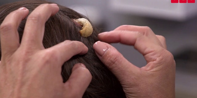 Woman seeks 'Dr  Pimple Popper's' help removing 'horn' on