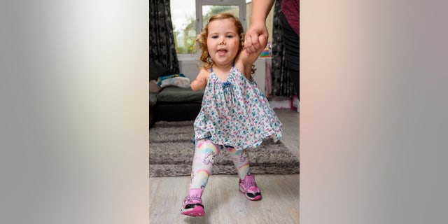 Harmonie-Rose first learned to walk unaided on her prosthetics about two years after receiving them.