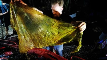 WARNING GRAPHIC IMAGES: 'Disgusting' 88-lb mass of plastic bags found in dead whale's stomach