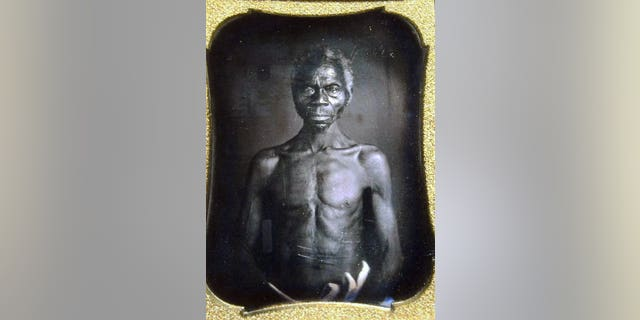 This copy of a 1850 Daguerreotype shows Renty, a South Carolina slave.