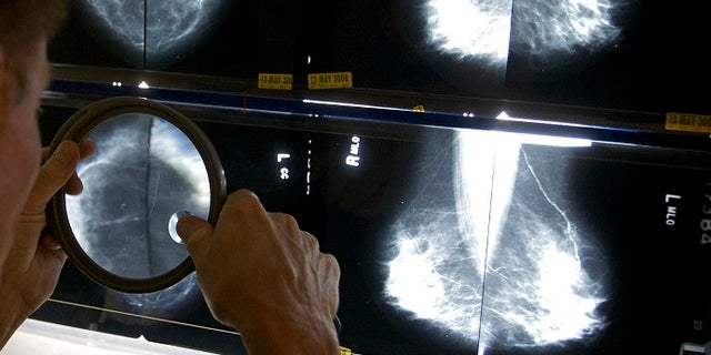 A radiologist uses a magnifying glass to check mammograms for breast cancer. (AP)