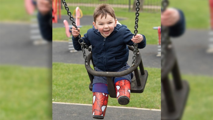 Boy severely abused as infant gets Spider-Man prosthetics to help him walk