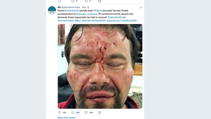 Polish journalist in Venezuela tormented, viciously beaten by government 'death squad,' his employer says