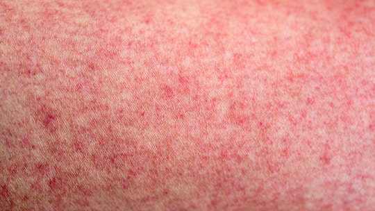 NY county considers next steps after judge rules against emergency order amid measles outbreak