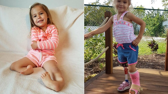 3-year-old born with 'backward' legs takes first steps after pioneering surgery