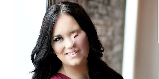 """""""I'm going to be beautiful and show everyone the beauty within me,"""" Sullivan resolved following the accident."""
