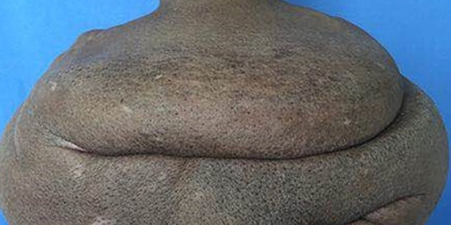 Westlake Legal Group NeckTumor-021 Surgeons remove man's 61-pound neck tumor in marathon operation fox-news/health/medical-research/surgery fox news fnc/health fnc article Alexandria Hein 678d732a-4c7d-5a2b-b07c-0b8243aac3a2