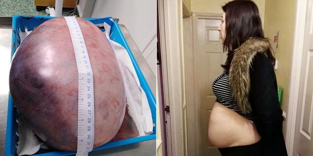 When she was sent for an ultrasound, Cummins said doctors estimated that the mass had grown to be around 20 centimeters, but later they discovered it was double that size.