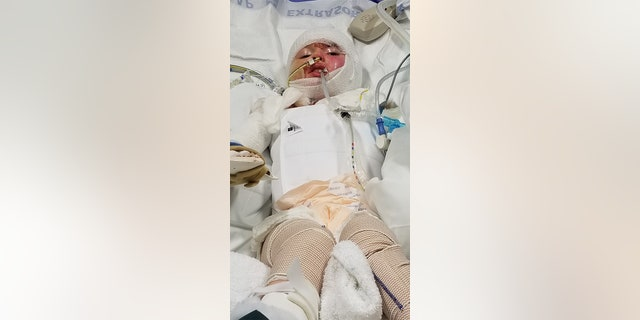 Westlake Legal Group candle-burns-1-Caters Girl, 6, suffers horrific burns after candle ignites sofa in neighboring apartment Janine Puhak fox-news/lifestyle fox-news/health/healthy-living/childrens-health fox news fnc/health fnc article 1272807a-7b00-5265-a614-1638f3081644