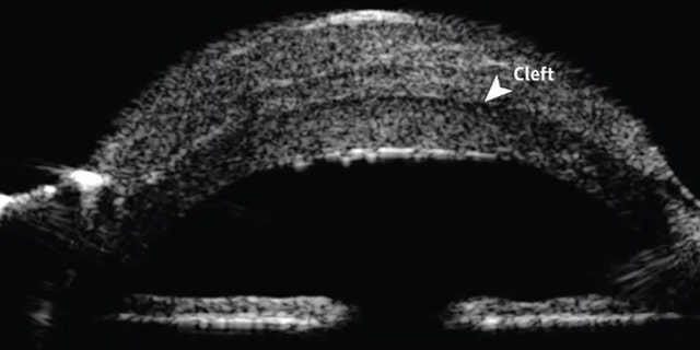 Westlake Legal Group eye-2-JAMA-Ophthalmology Man develops odd lesion on eyeball 2 years after cataract surgery Rachael Rettner LiveScience fox-news/health/vision-and-hearing fox-news/health/medical-research/rare-diseases fnc/health fnc article 0a3922b5-f0a2-57df-ae0a-8762cb24030d