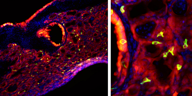 Bright green tuft cells, which are found in taste buds, are seen throughout mouse lung tissue after an infection with the flu.