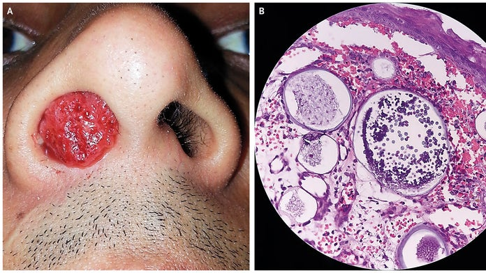 Man develops gruesome nasal growth after swimming in local pond