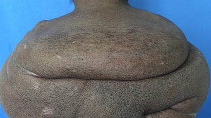 Surgeons remove man's 61-pound neck tumor in marathon operation