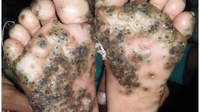 Girl's feet infested with parasitic sand fleas after running through pigsty barefoot