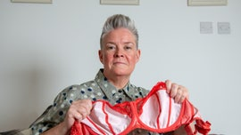 Woman claims tight-fitting underwire bras caused giant cyst, gaping 'hole'