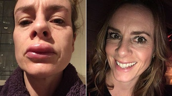Mom says reaction to cheap teeth-whitening kit left her with swollen, blistered lips
