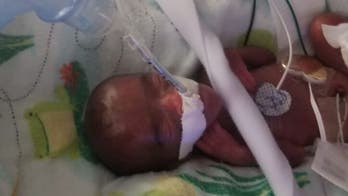 San Diego hospital announces birth of world's tiniest surviving baby