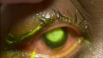Eye doctor warns against sleeping in contact lenses with graphic images: 'People need to see these'