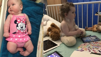 Toddler born with rare birth defect has legs amputated, will be fitted with prosthetics