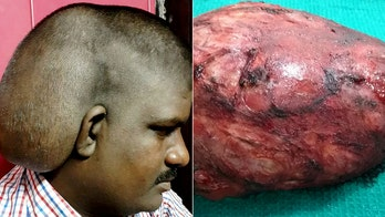 Man let massive head tumor grow for 20 years over alleged fear of surgery