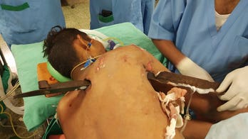GRAPHIC PHOTOS: Man survives horror injury after being impaled by 2.5-foot iron spike