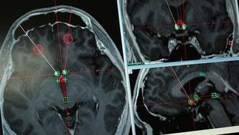 Doctors eye deep brain stimulation to treat opioid addiction