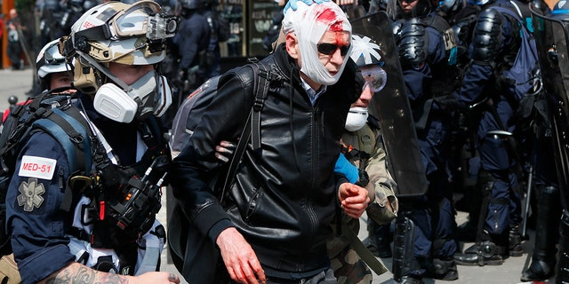 A man, his face covered in blood, is assisted as he walks away during a May Day demonstration in Paris. (AP Photo/Francois Mori)