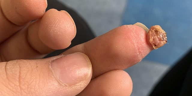 Eventually, a doctor was able to cut the growth out of her finger, but she said she has now sworn off fake nails.