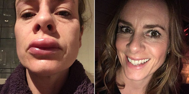 Clark is now warning others about the potential hazard of choosing a cheaper at-home teeth-whitening kit rather than visiting a licensed dentist after she was left with swollen lips and a blistered mouth.