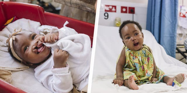 Seven-month-old Aissata and her mother came to the Africa Mercy not long ago seeking help for Aissata's cleft lip, which could have caused serious health and nutritional problems down the line.