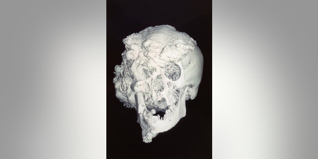 "The skull of Joseph Merrick, Victorian England's famous ""Elephant Man."" In the century following Merrick's death in 1890, the most widely held theory was that he suffered from neurofibromatosis, often referred to as ""Elephant man disease."""