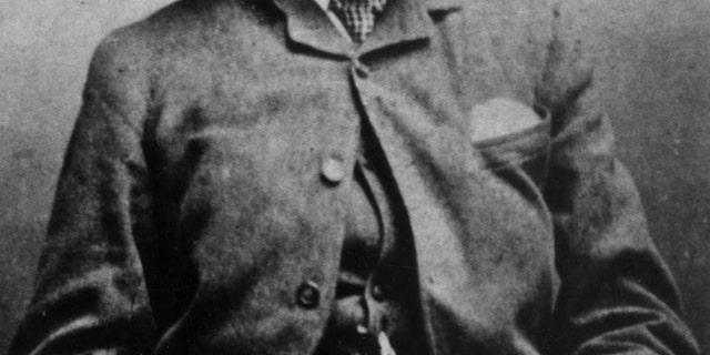 Joseph Carey Merrick (Photo: Universal History Archive/UIG via Getty Images)